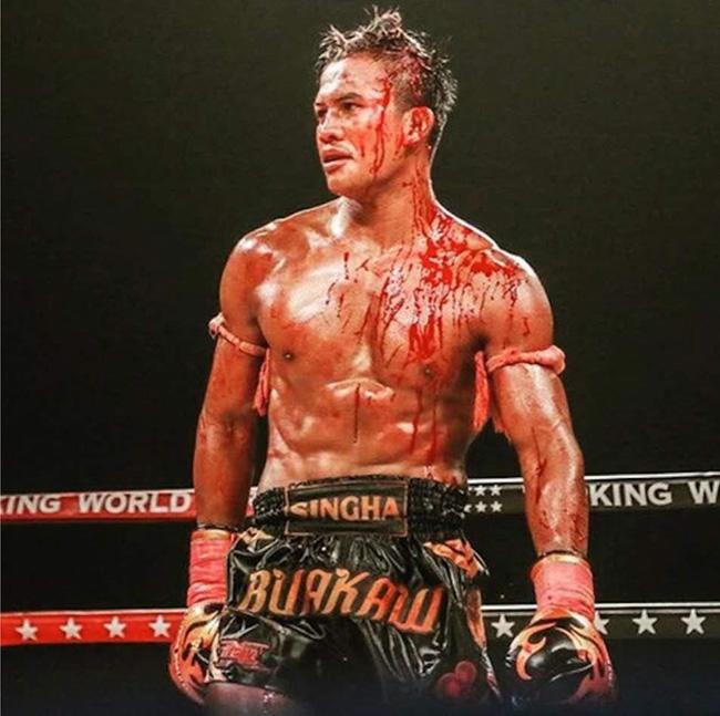 Chấn thương các võ sỹ thường gặp khi chơi Muay Thái 2