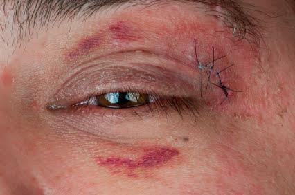 Chấn thương các võ sỹ thường gặp khi chơi Muay Thái 3