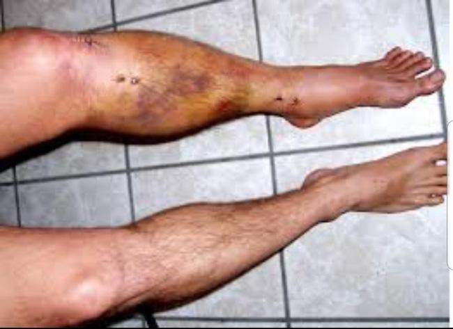 Chấn thương các võ sỹ thường gặp khi chơi Muay Thái 6