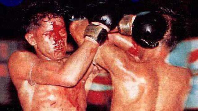 Chấn thương các võ sỹ thường gặp khi chơi Muay Thái 1